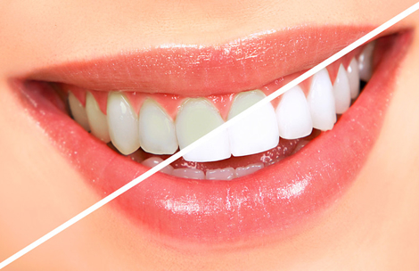 Teeth Whitening Westlake Village
