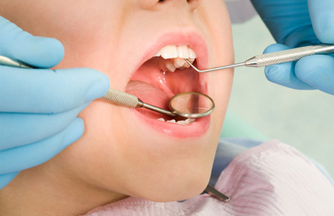 Composite Fillings Westlake Village