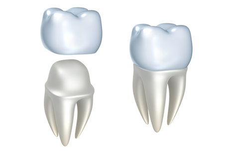 Dental Crowns Westlake Village